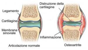 funzione articolare e tessuti