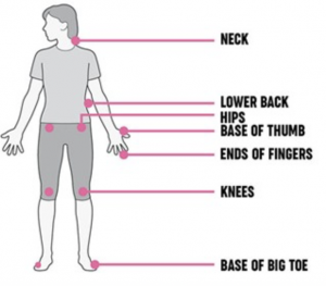 articolazioni affette da osteoartrite