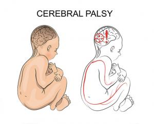 bambino con paresi cerebrale