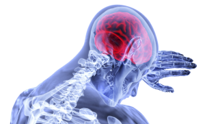 fattori psicologici e cognitivi low back pain