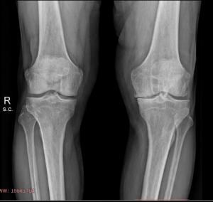 osteoartrosi ginocchio