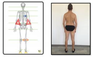 valutazione posturale 1