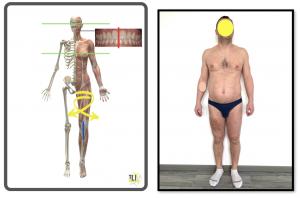 valutazione posturale 2