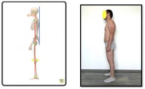 valutazione posturale 3