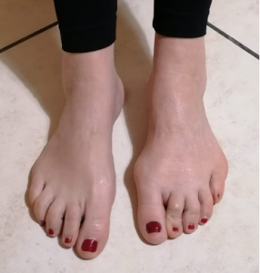 piede sinistro con alluce valgo