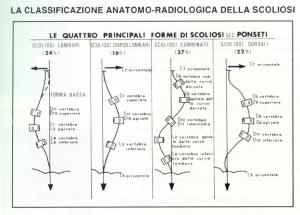 classificazione anatomo-radiologica della scoliosi