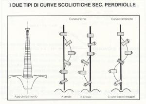 tipi di curve scoliotiche (Perdriolle)