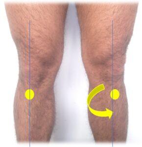 schemi disfunzionali sulla linea superficiale posteriore